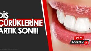 Diş Çürüklerine Artık Son!!!