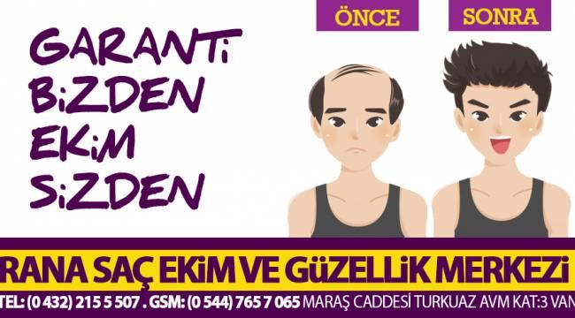 RANA SAÇ EKİM MERKEZİ - 05447657065 - Van saç ekim ve Van güzellik merkezinde dev indirimler