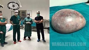 Van'da Mucizevi Ameliyat - Kadının içinde çıkanlar şok etti